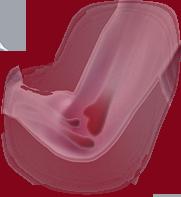 orthopäde maschen
